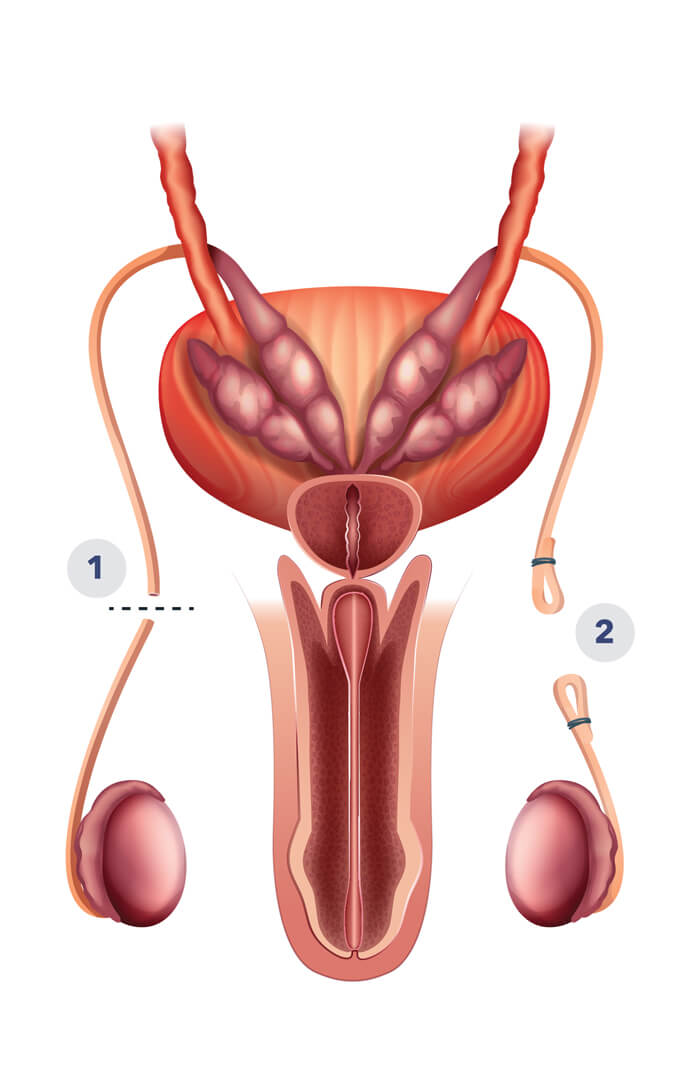 Vasectomy illustration